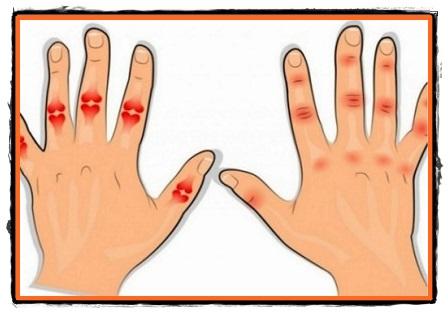 artroza articulațiilor interfalangiene ale mâinii